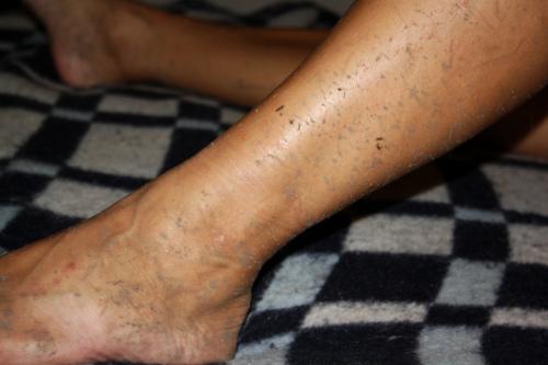 Schmutzige Beine